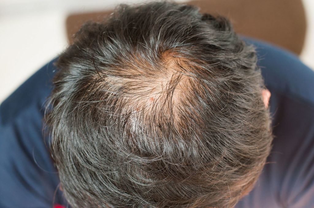 Haarbehandlungen für schönes, dichtes Haar.