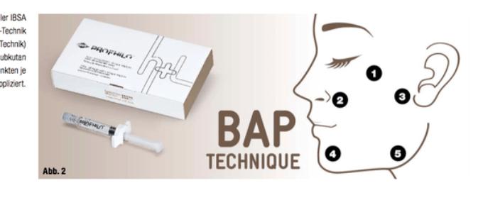 BAP-Technique